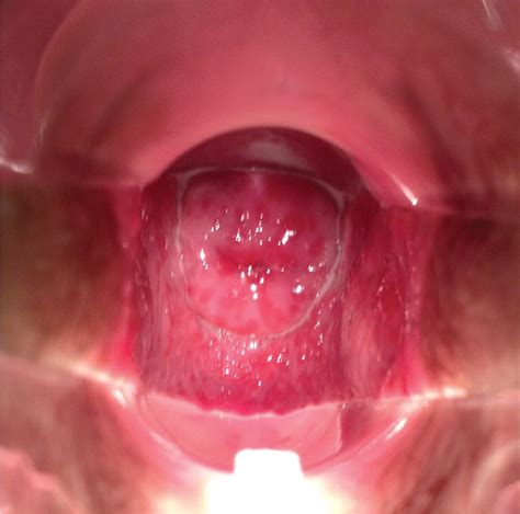 womens vagiana vaginal discharge in a young woman photo quiz american