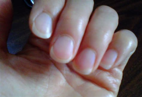 Detoxing From Fingernails by Toe Nails Growing Up Best Nail Designs 2018