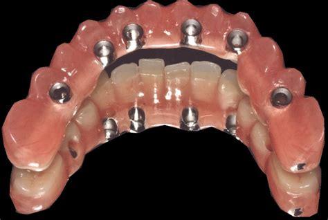 quanto costa una protesi dentaria mobile protesi mobile arcata superiore prezzo toronto bridge e