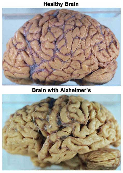 alzheimer s alzheimer s disease here s to the future