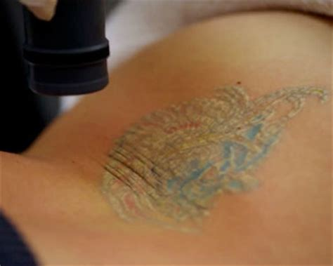 most effective tattoo removal method baltimore removal