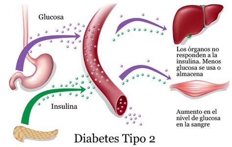 alimenti diabete tipo 2 diabete tipo 2 verso una nuova terapia funiblogs funiber