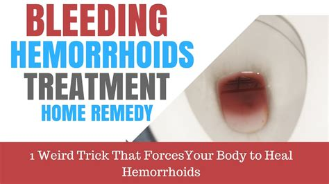bleeding hemorrhoids home remedies 28 images bleeding