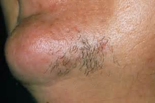 pubic hair at the hirsutism