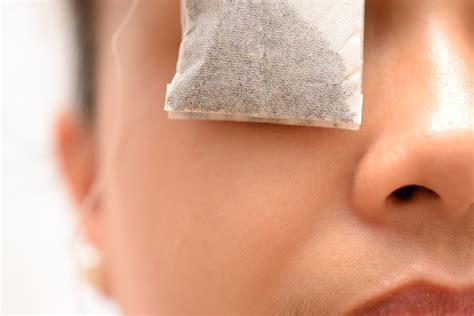 how to treat eye infection at home how to treat eye infection naturally 3 steps with pictures