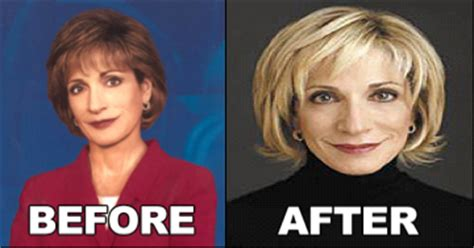 mika brzezinski plastic surgery before and after pictures celebrity cosmetic surgery photos andrea mitchell plastic