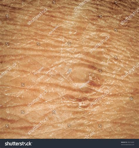 human skin texture stock photo image 76786839 skin texture detail human stock photo 95010400