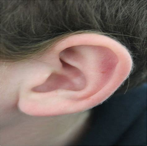 itchy ears image gallery itchy ear x