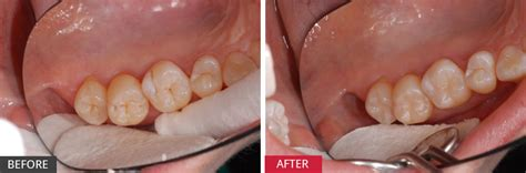 case study pit fissure tooth decay caring  smiles