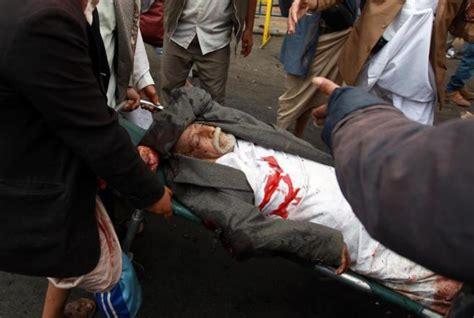 imagenes fuertes oscar taveras mueren 47 manifestantes y 19 soldados en dos ataques en