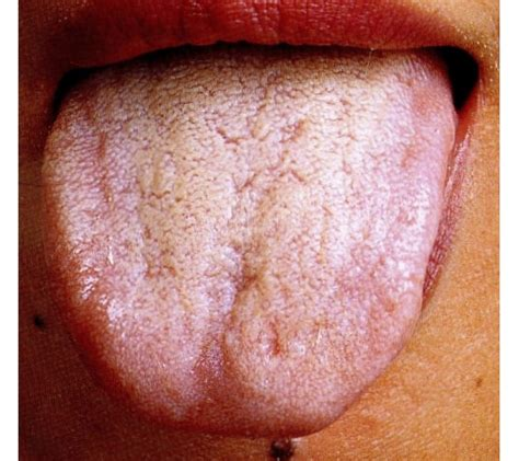 White Coated Tongue Detox by 白苔 はくたい White Coating 舌を診察すれば 病気がわかる 舌診