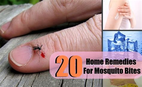 20 mosquito bites home remedies treatments cures
