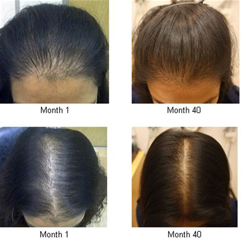 female pattern hair loss minoxidil rogaine women before and after quotes