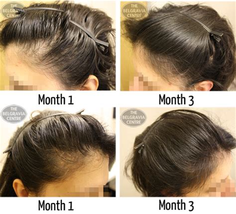 haircuts for extreme hair loss in woman receding hairline hairstyles for female hair loss hairstyles
