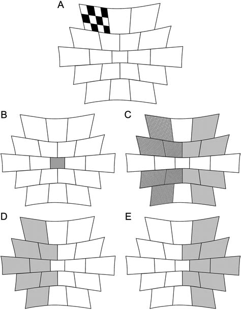 pattern erg multifocal pattern electroretinography for the detection