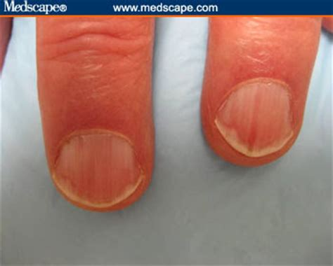 red nail beds m rishan shareef collection of articles finger nails to predict health