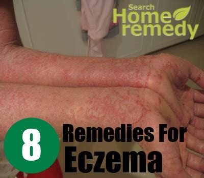 8 herbal remedies for eczema eczema treatment search