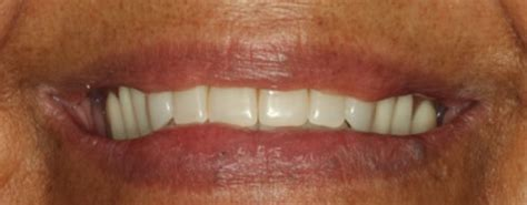 Testimonial Agnes 1 testimonials sherman tx dentist dr shoemaker