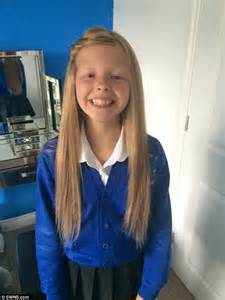 little schoolgirl princess schoolgirl with alopecia develops scalp rash after the nhs