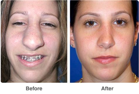 photo gallery before and after cosmetic surgeon in the rhinoplasty nose job las vegas nose beautification