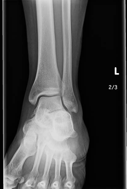 husband  left ankle issues    years