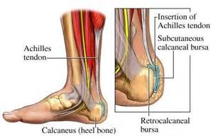 Planters Fasciitis Exercises by Plantar Fasciitis Arizona Pain Specialists Phoenix