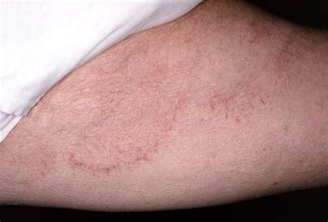 jock itch. causes, symptoms, treatment jock itch