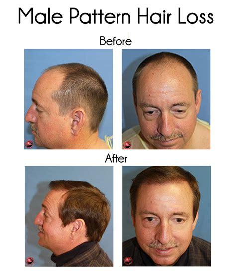 faq main hair loss hair transplant and restoration los angeles hair restoration clinic predicts more hair