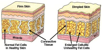 Cellulite 101 Definition And Cause by Cellulite Beginners Course 101 The Basics The Facts Vs