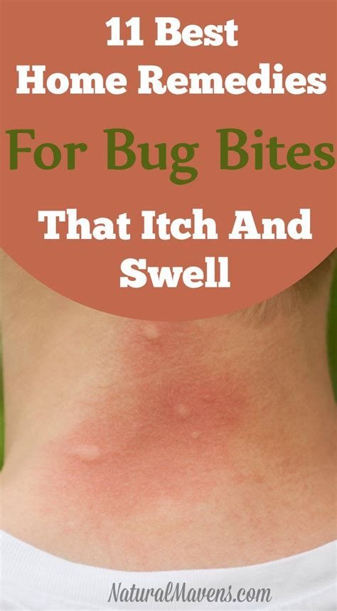 best 25 bug bite relief ideas that you will like on
