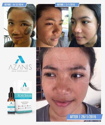 Azanis Scar Serum Original New Pack 2017 azanis scar serum murah pack baru end 12 9 2018 10 15 pm