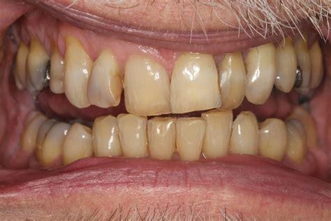 internal bleaching internal tooth bleaching boyne dental