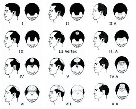 different types of receding hairlines balding why you should watch your hairline men s hair blog