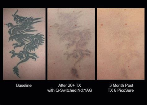 tattoo removal penrith 100 laser tattoo removal gallery picosure laser