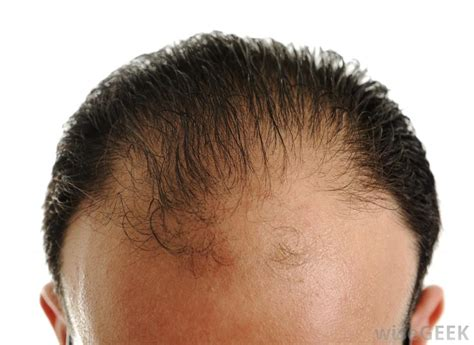 different types of receding hairlines why do men go bald with pictures