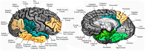 pattern analysis brain patterns of regional brain atrophy factor analysis of