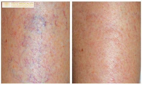 vasi capillari rotti capillari e venule gambe