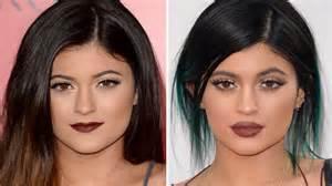 lippen aufspritzen vorher nachher bilder funk beautyblog lippen aufspritzen