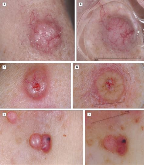 Melanoma On The Breast Pictures dermoscopic findings in cutaneous metastases breast