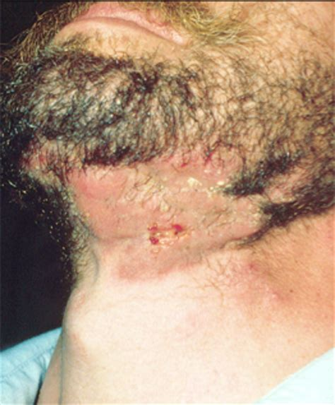 how to treat infected chin hair ringworm dermatologist in willowbrook south barrington il