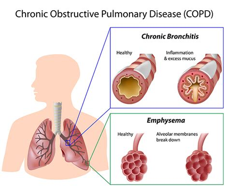 chronicallybrave a place of understanding lung diseases and copd facts understanding the breathing