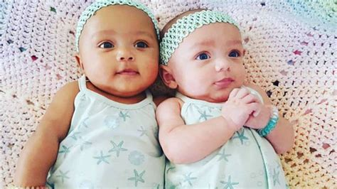 baby skin color baby from illinois born with different skin
