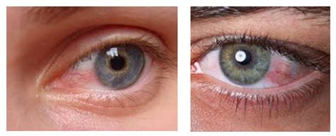 eye problems pcos has been linked to eye and other vision problems