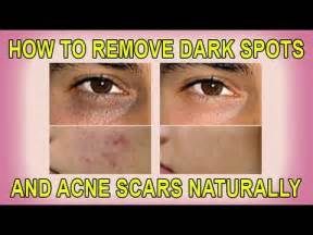 How to remove dark spots and acne scars naturally youtube