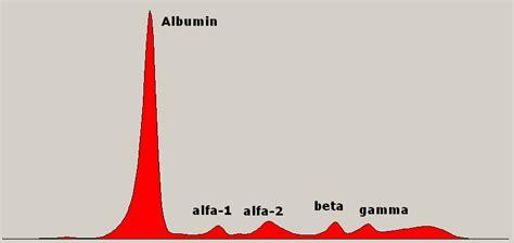 u protein electrophoresis protein electrophoresis serum causes symptoms