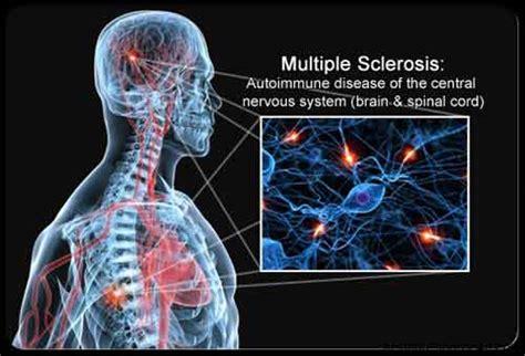 sclerosi multipla alimentazione sclerosi multipla cause diagnosi sintomi e terapie
