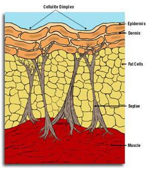Cellulite 101 Definition And Cause by Celluliteclear Is An Effective Remedy For Cellulite Treatment