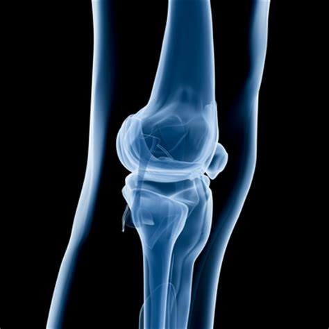 Detoxing After X Rays by Study Scaling Lowers Infection Risk After Knee Surgery