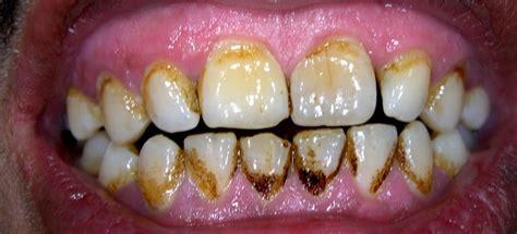 Pembersihan Karang Gigi Di Kimia Farma Macam Macam Penyakit Gigi Sahabat Kulit Sehat