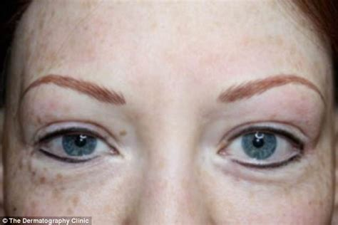 tattoo eyebrows daily mail incredible photos show before and after of medical tattoos